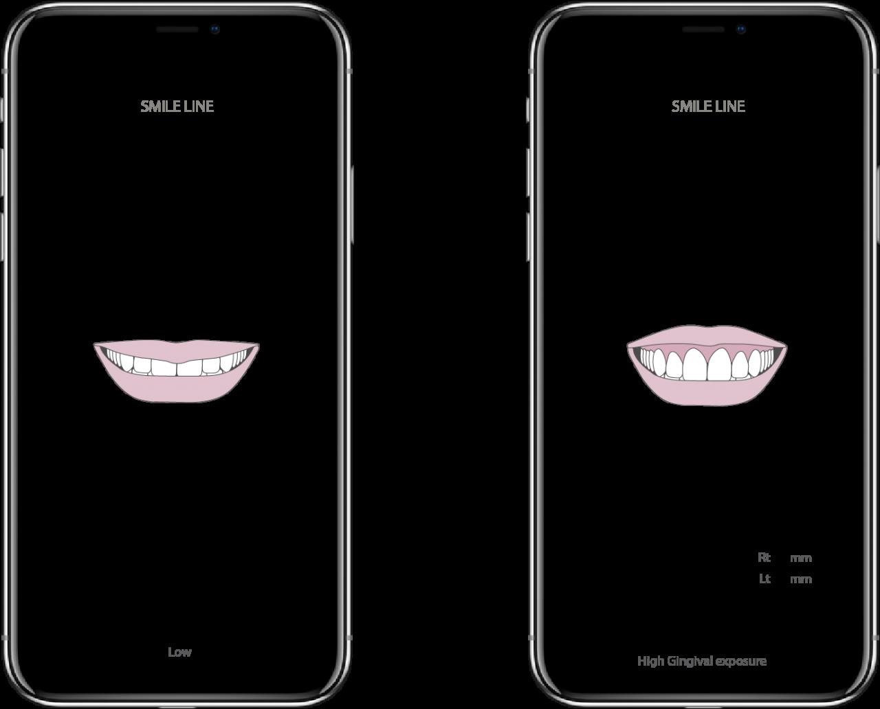 smiledesign03