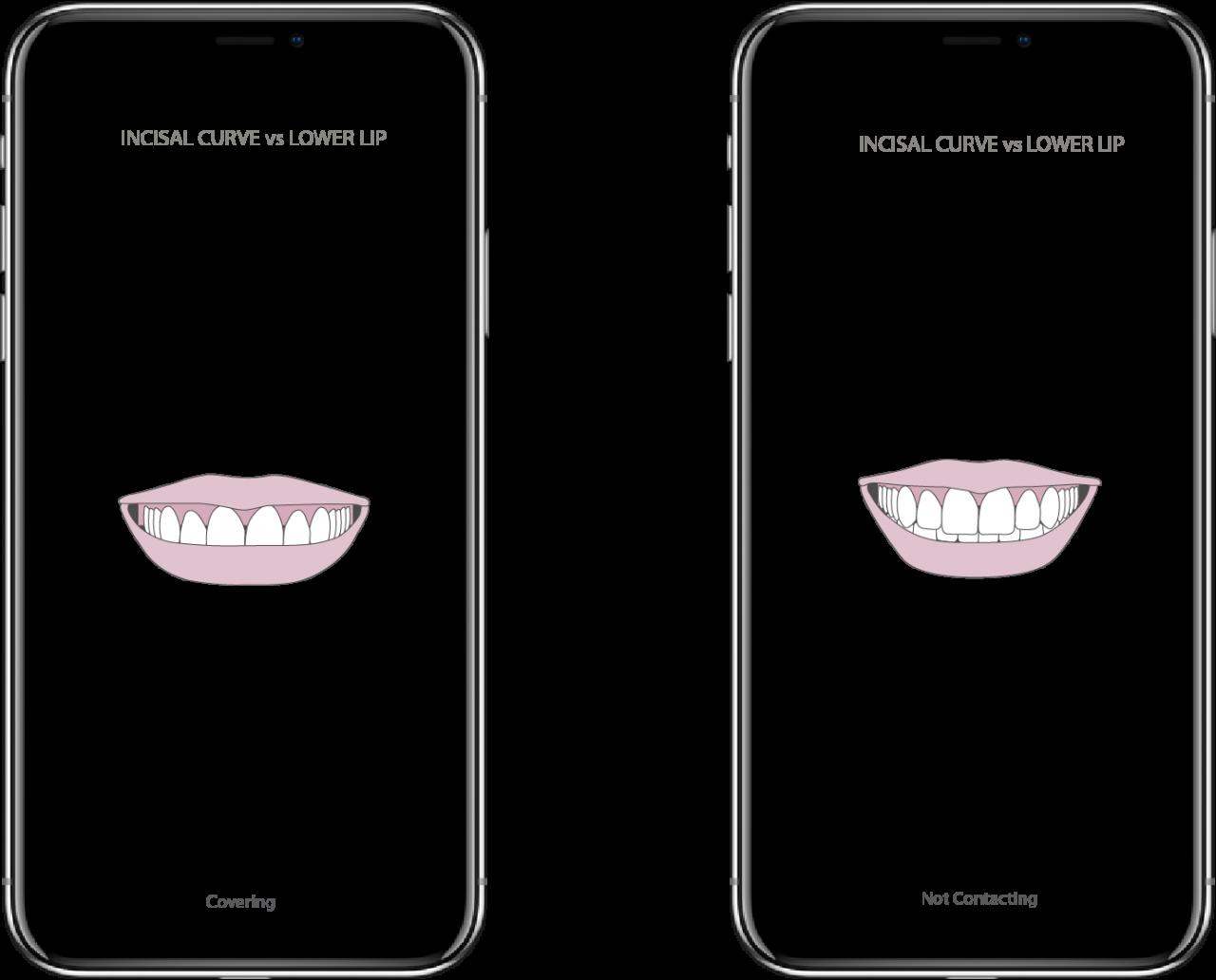 smiledesign04